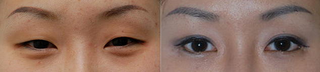 blepharoplasty before & After Picture